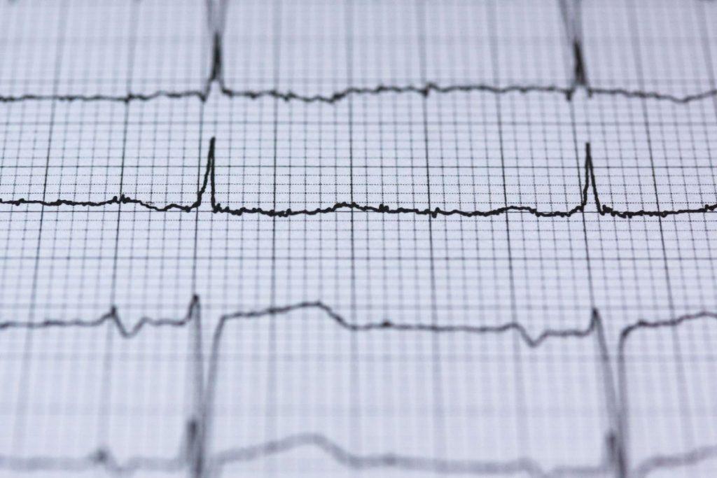 Das Protokoll eines Elektrokardiogramms (EKG)