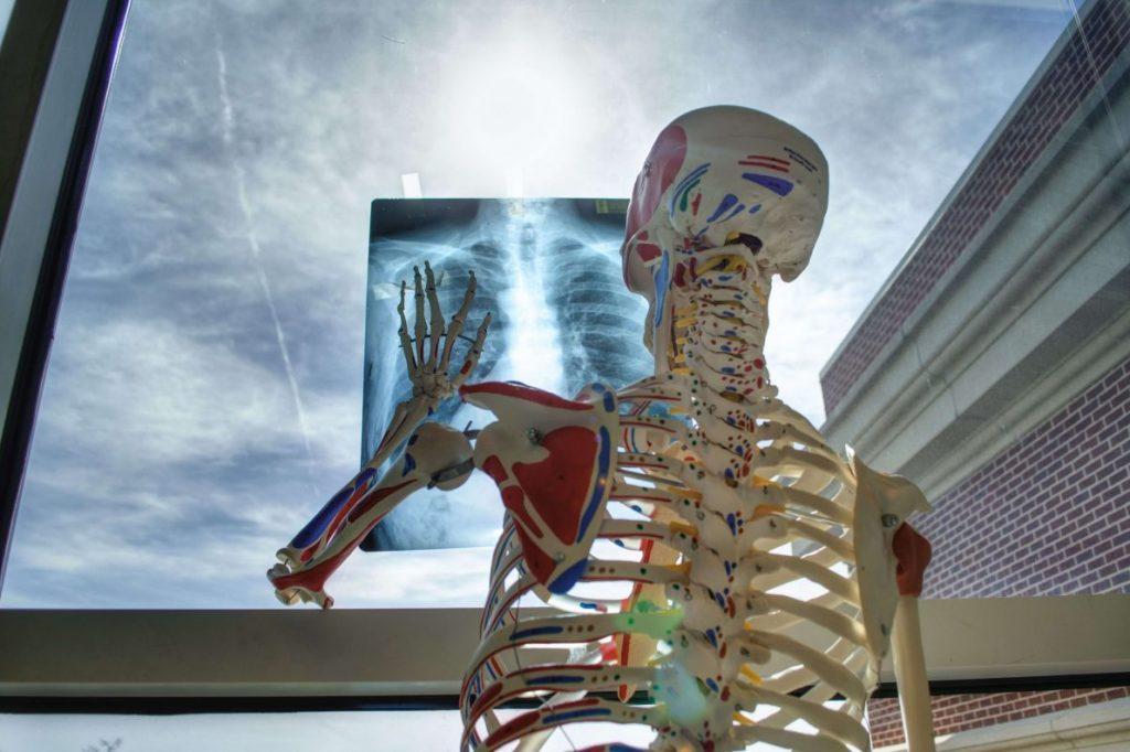 Skelett hält ein Röntgenbild an die Scheibe